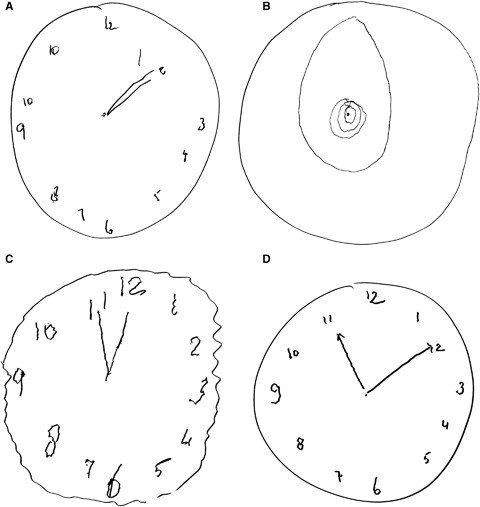For the Clock-Drawing Test, the patient is asked to draw a