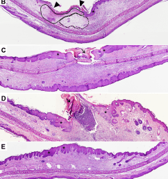 histological overview of m ulcerans infected skin in the guinea pig model guinea pigs were subcutaneously infected in the ear with 4 5 log10 cfu of m  [ 850 x 1421 Pixel ]