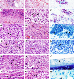 histological details of m ulcerans infected skin in the guinea pig model guinea pigs were subcutaneously infected in the ear with 4 5 log10 cfu of m  [ 850 x 1044 Pixel ]