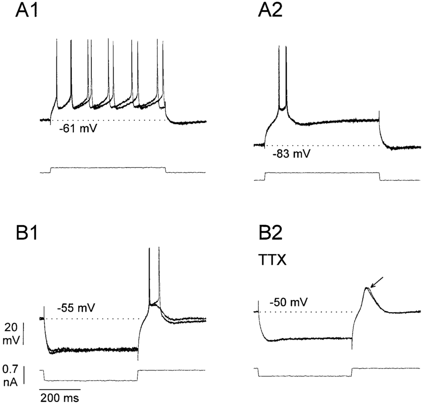 Electrophysiological properties of MFC neurons. A