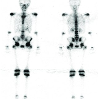 A. MRI shows compression fractures of vertebral bodies Th7