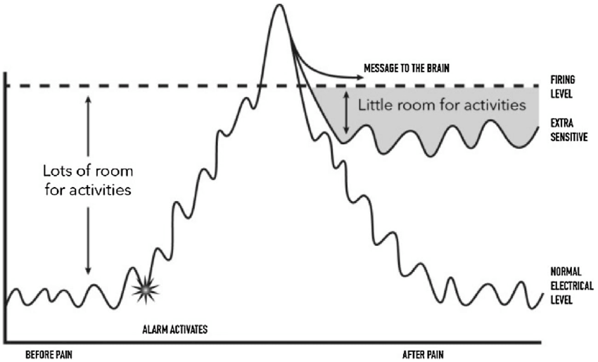 Metaphorical alarm system depiction of CS before and after