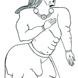 (PDF) Liposuction in Dercum's disease