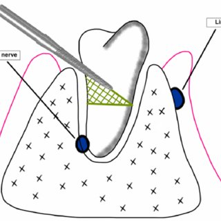 (PDF) Coronectomy versus surgical removal of the lower