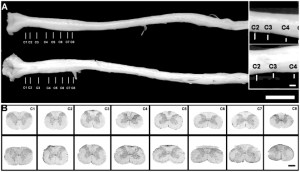 A The entire spinal cord was dissected from the spine both in young | Download Scientific