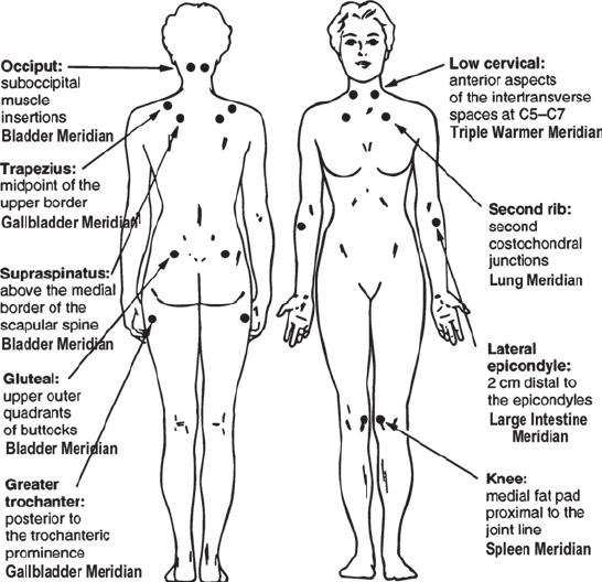 18 tender points of fibromyalgia diagram there will come soft rains plot american college rheumatology acr point map with acupuncture correlates