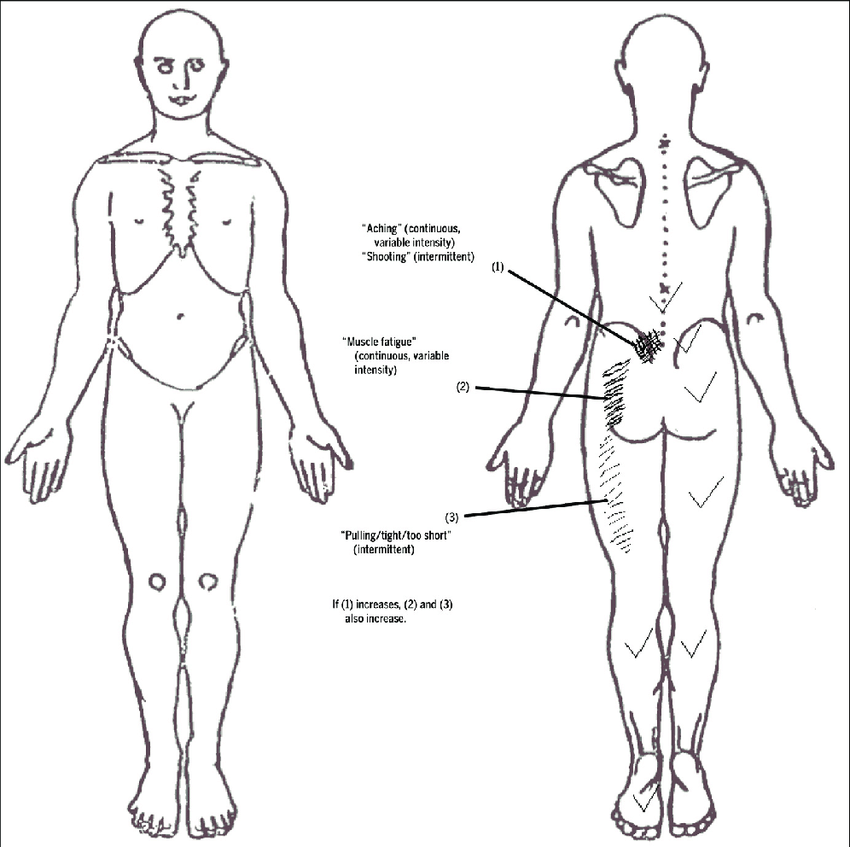 Body chart. Patients' description of pain between