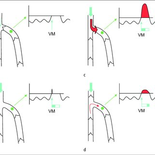 a. Flow and reflux under manual compression of the calf in