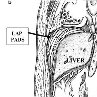 Veno–veno bypass permits hepatic vascular isolation with