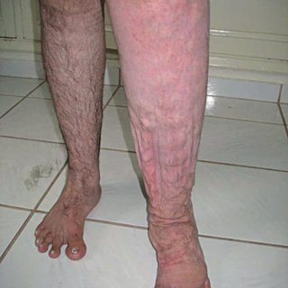 Bilateral severe edema and cobblestone appearance of lower ...