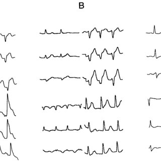 Attenuation corrected stress-rest Tc-99m-Sestamibi