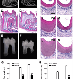 tooth phenotypes in oc cre wls co co mice mandibular molars of [ 850 x 1096 Pixel ]