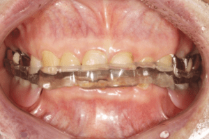 Occlusal overlay splint was delivered and monitored for 1 month to   Download Scientific Diagram