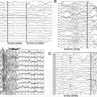 (PDF) Genetic and neurodevelopmental spectrum of SYNGAP1