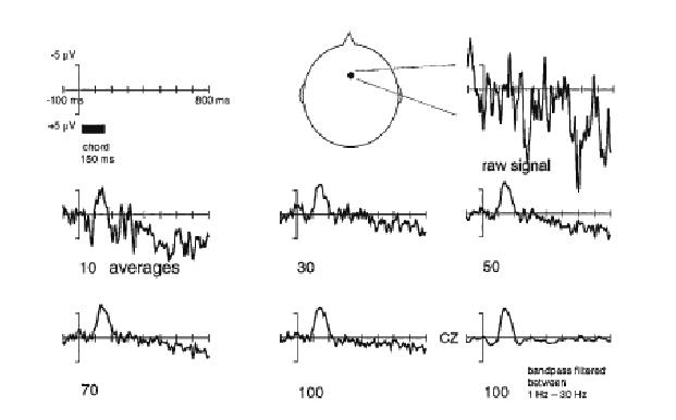 1 EEG signal processing. The EEG signal is displayed in