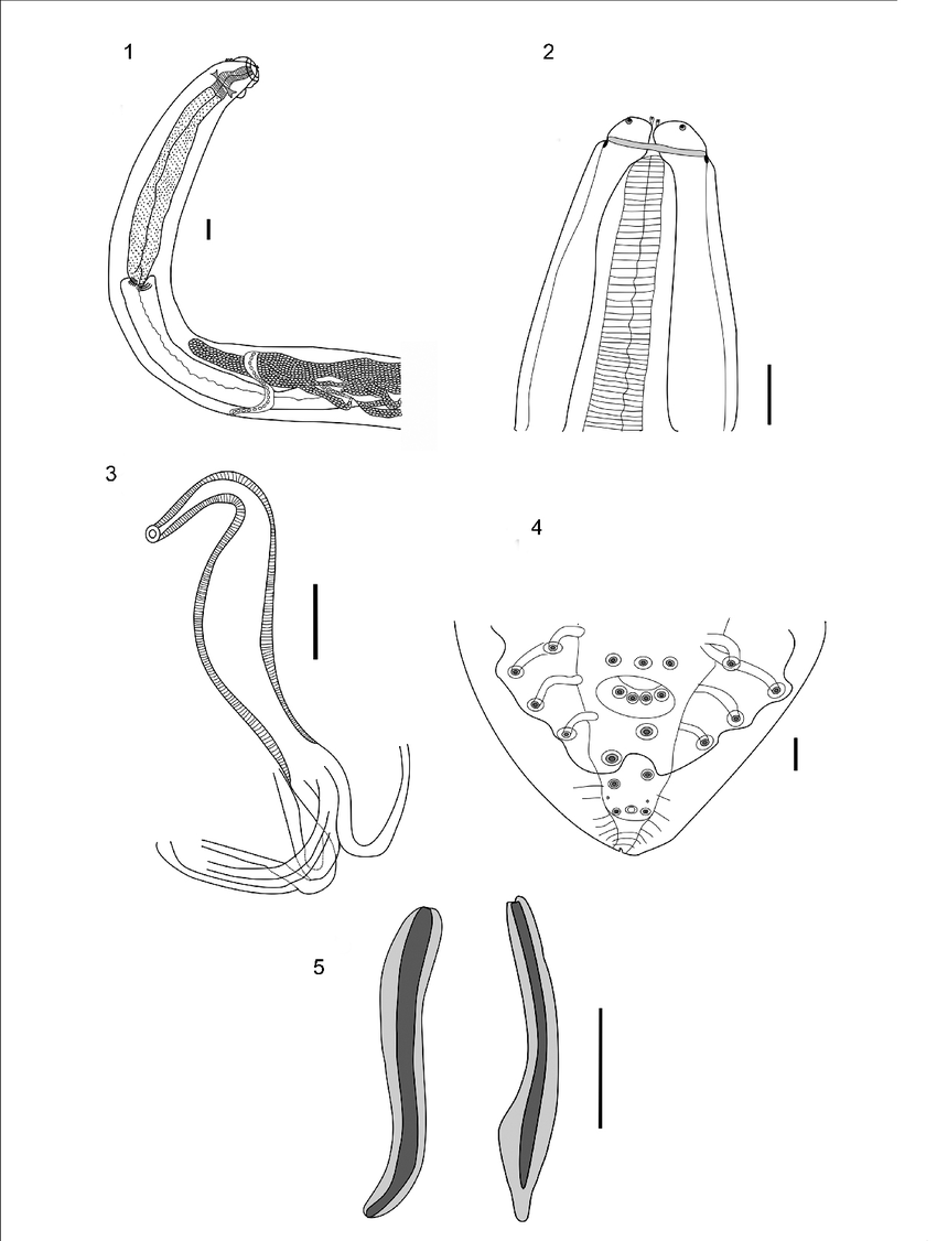 medium resolution of  1 female anterior end showing muscular and glandular esophagus nerve ring vulva opening scale bar 100 m 2 male anterior end showing tripartite