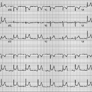 A 12­lead ECG of a 29­year­old man with acute pericarditis