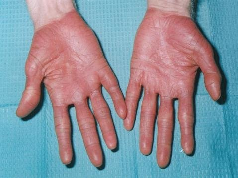 Palms of the hand showing diffused hyperkeratosis ...