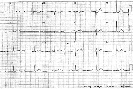 Electrocardiogram on admission, demonstrating complete