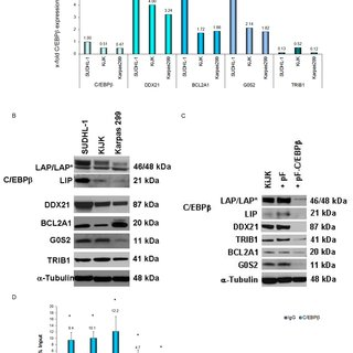 DDX21 expression in primary cases. (A) Flow cytometric