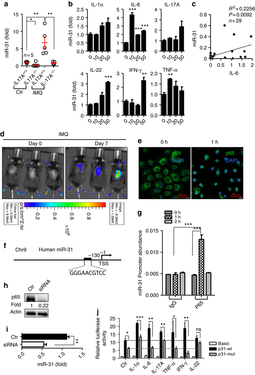 Requirement of NF-κB signaling for the induction of miR-31