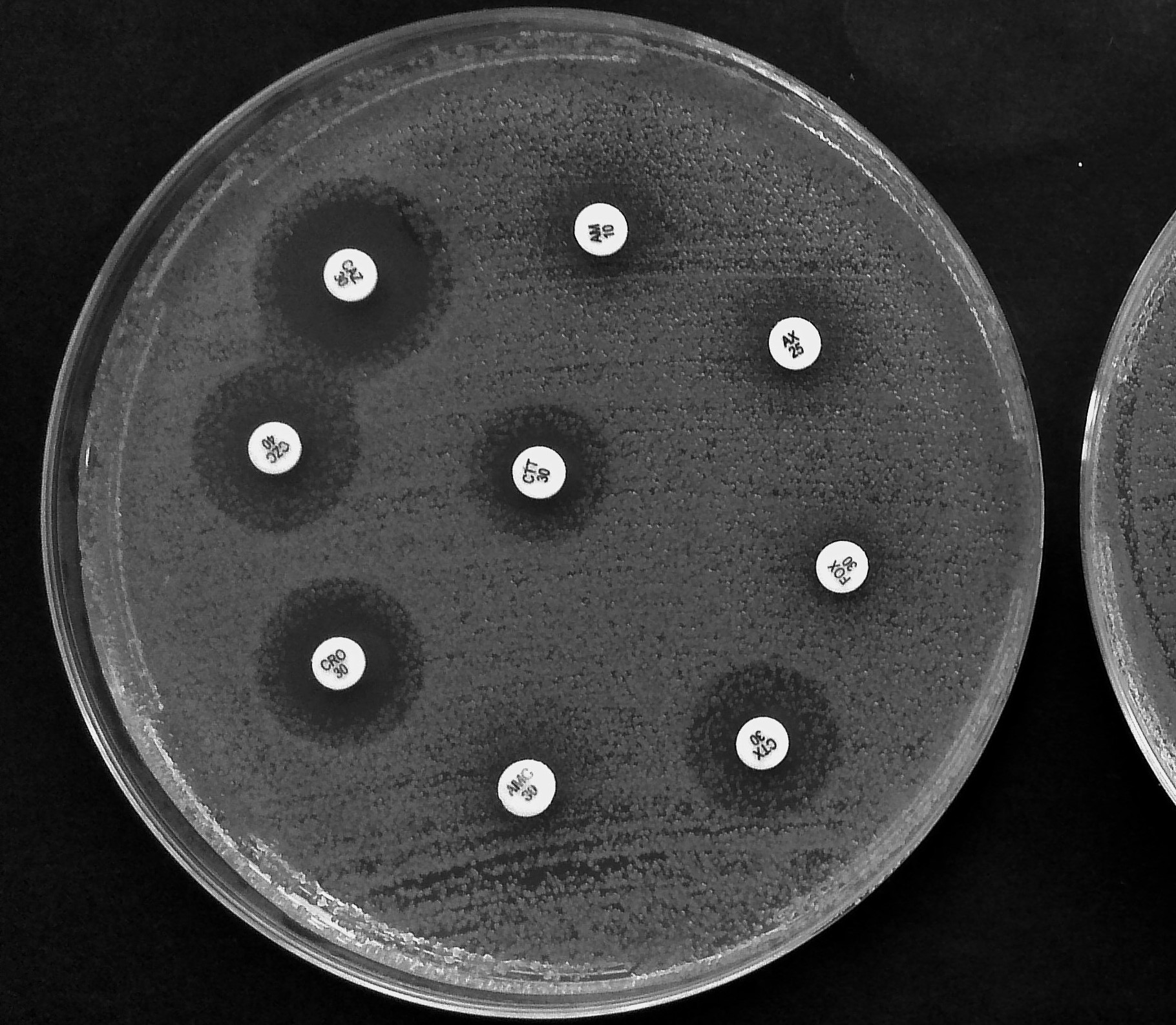 Does Anyone Know About Antibiotic Disk Diffusion Method