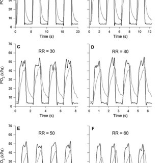 (PDF) A fibre optic oxygen sensor that detects rapid PO2