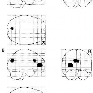 (PDF) Episodic retrieval activates the precuneus