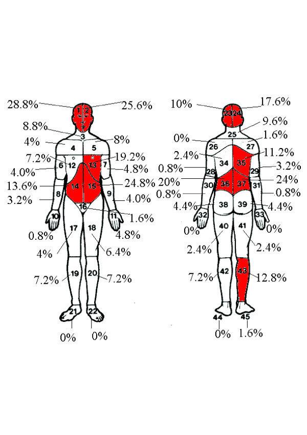 gallbladder pain diagram