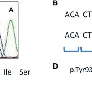 (A) Adenomatous polyposis coli (APC) germline mutation