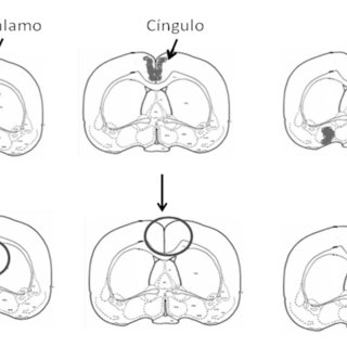 (PDF) Neurobiología del amor romántico y la fidelidad