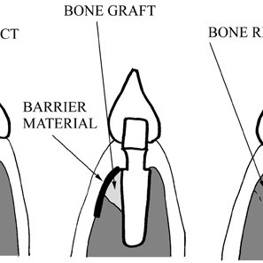 -Posterior bitewing radiograph demonstrating moderate