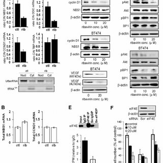 All breast cancer cell lines express high levels of eIF4E