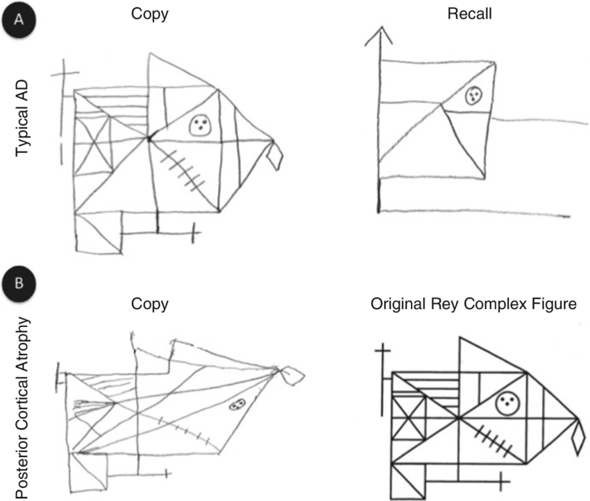 4 Copy and recall of the rey complex figure in typical