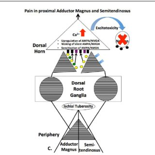(PDF) Peripheral and Spinal Mechanisms of Pain and Dry