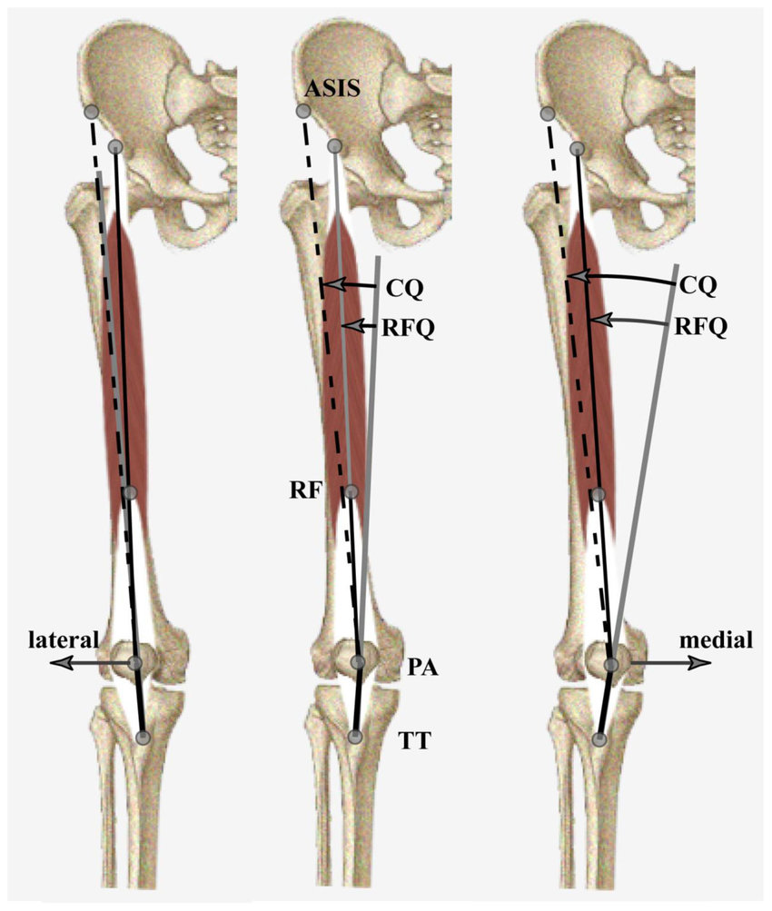 hight resolution of effect of patellar displacement on q angle