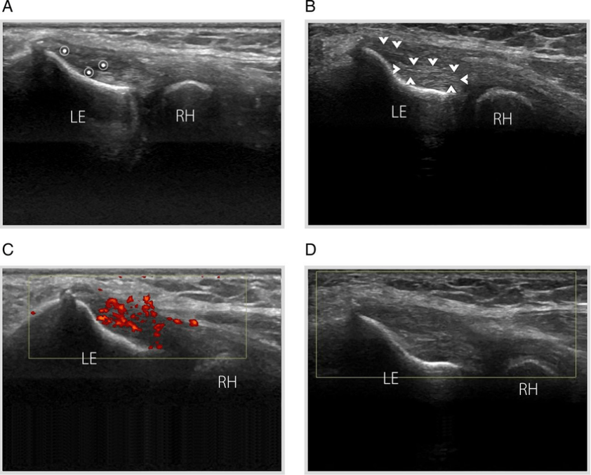 Lateral epicondylitis in a patient with a history of ...