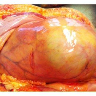 Internal examination: overdistended bladder containing 3.7