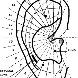 (PDF) The therapeutic efficacy of somatic acupuncture is