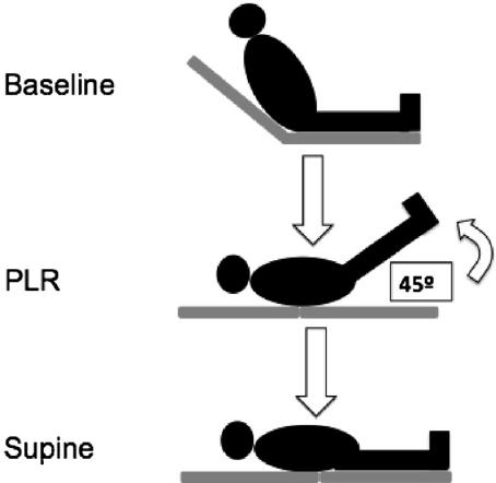 Orthostatic maneuvers. PLR 5 passive leg raising