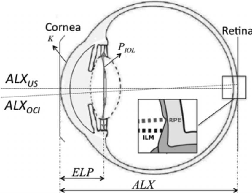 Schematic of an eye. See the text (Sec. 2) for the meaning