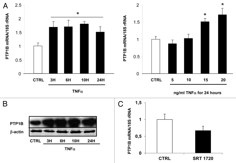 Visfatin is involved in TNFα-mediated insulin resistance
