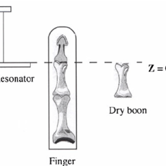 Diagram Of A Bone Inside Fios Ont Wiring Vertical Position The Finger And Surface Coil Resonator Drawn Separately