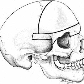 (PDF) Surgical Management of Pancraniofacial Synostosis