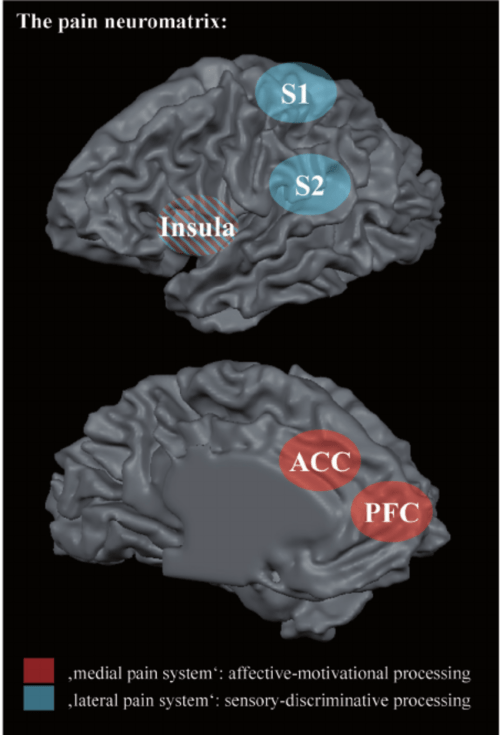 small resolution of this schematic illustration shows the pain neuromatrix on a reconstructed left hemisphere from lateral top