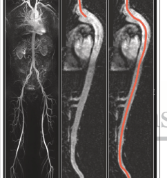 demonstration of calculation of the right carotid femoral intra arterial path length initially a [ 850 x 1444 Pixel ]