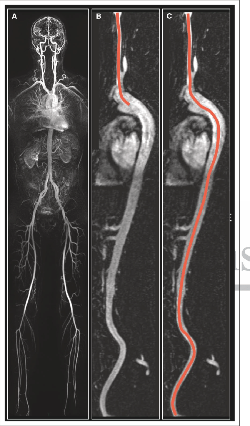 hight resolution of demonstration of calculation of the right carotid femoral intra arterial path length initially a