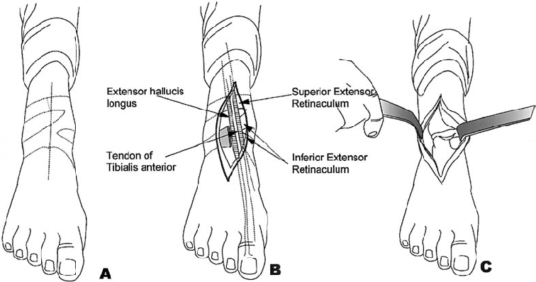 A, Midline anterior straight skin incision over the ankle