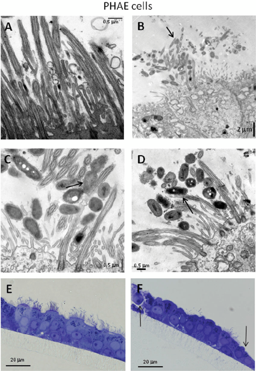 medium resolution of primary human airway epithelial phae cells infected with b pertussis download scientific diagram