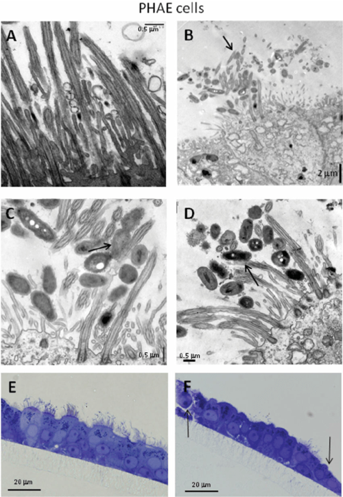 small resolution of primary human airway epithelial phae cells infected with b pertussis download scientific diagram
